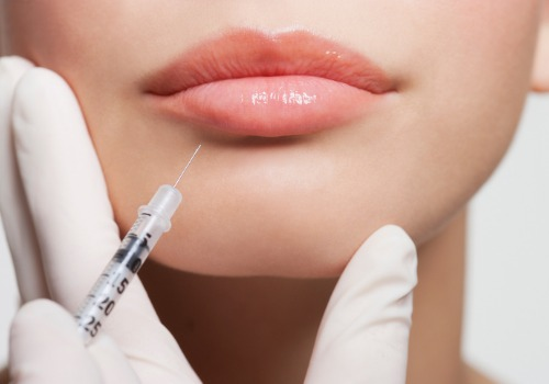 close-up-of-woman-receiving-botox-injection-in-lips-picture-id147206877 (1)