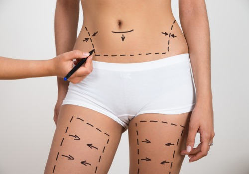 person-hand-drawing-lines-on-womans-abdomen-and-leg-picture-id513584484